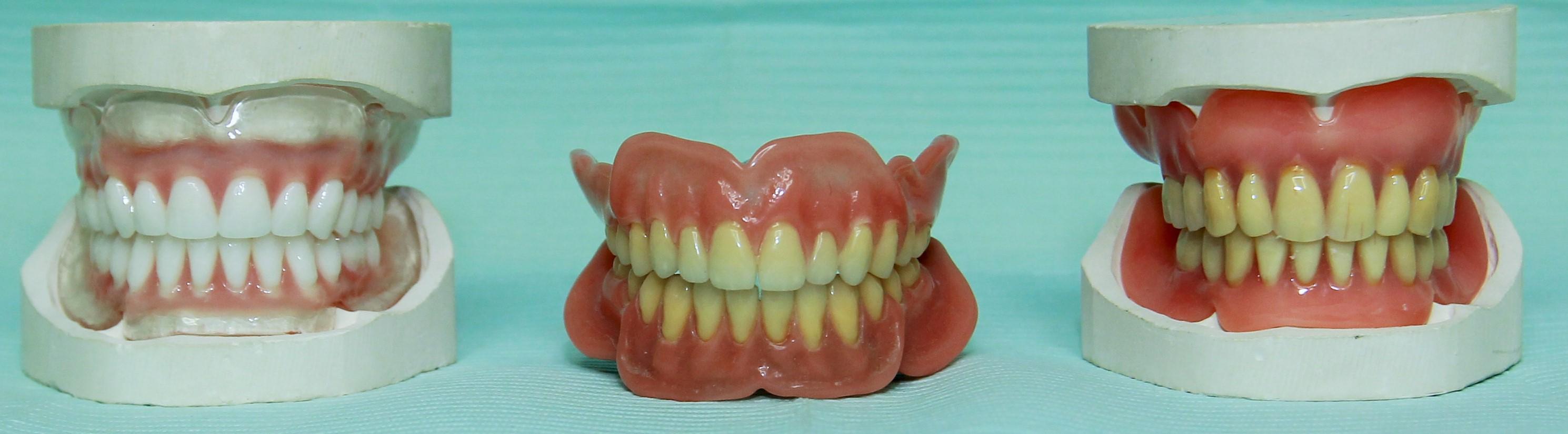 Tandprothetische Praktijk Waars uw prothese specialist